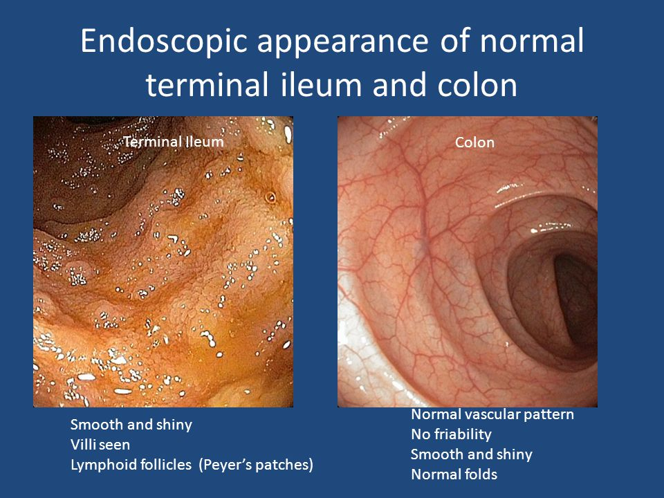What S So Special About Pediatric Ibd Ppt Video Online