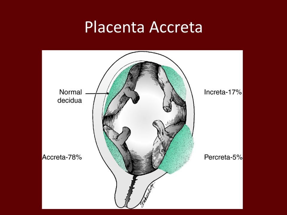Placenta Accreta Defined as abnormally adherent placenta.