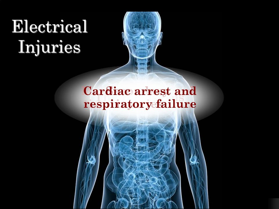 Electrocution Injury