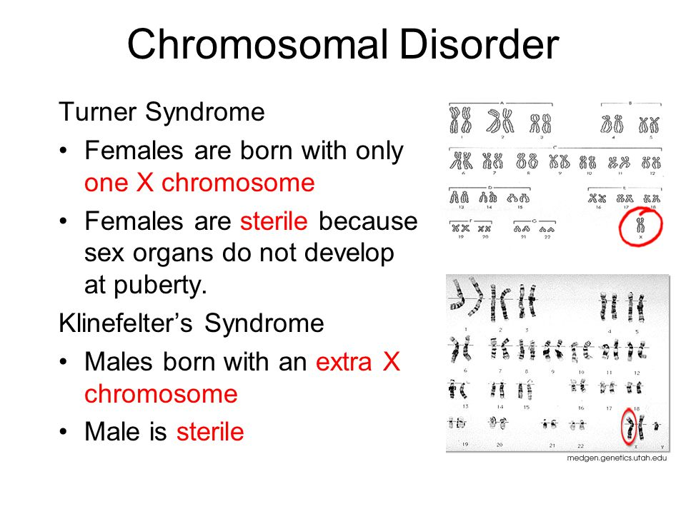 Chromosomal Disorder Turner Syndrome