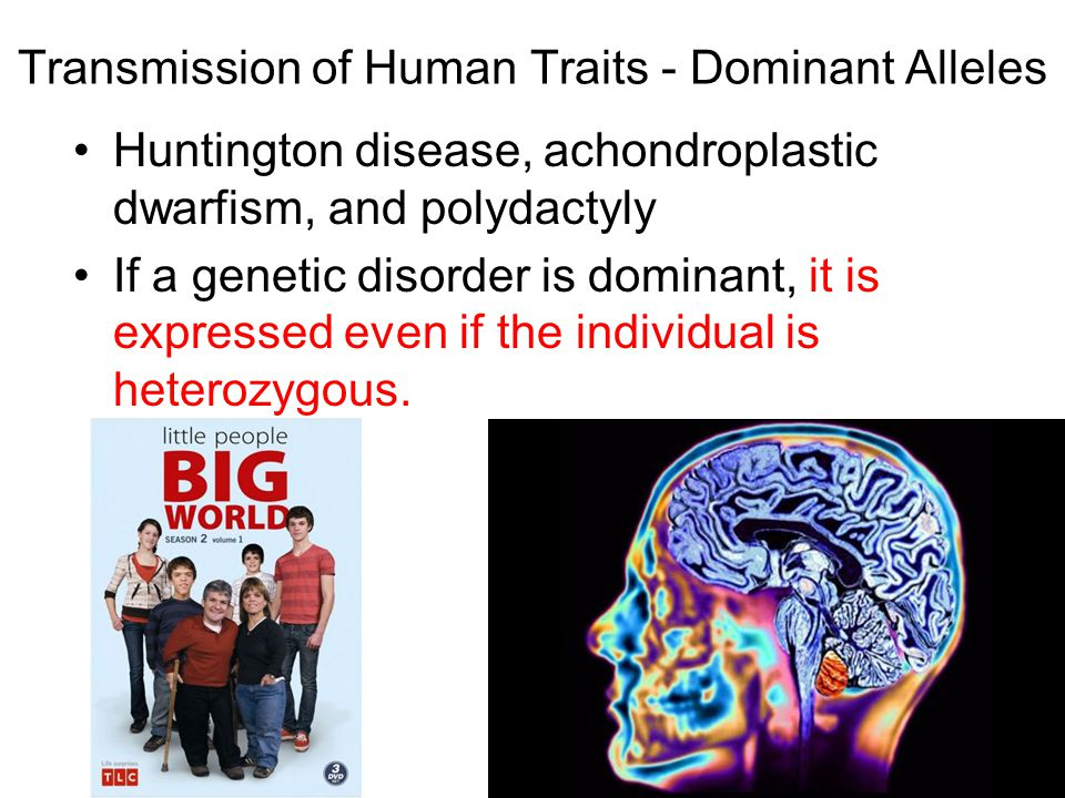Transmission of Human Traits - Dominant Alleles