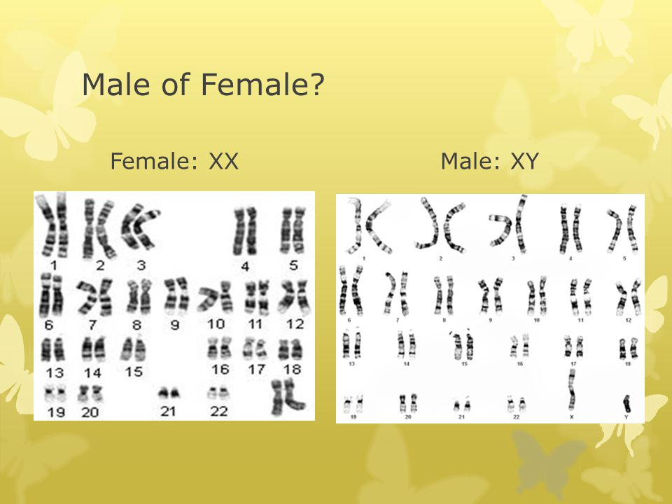Male of Female Female: XX Male: XY
