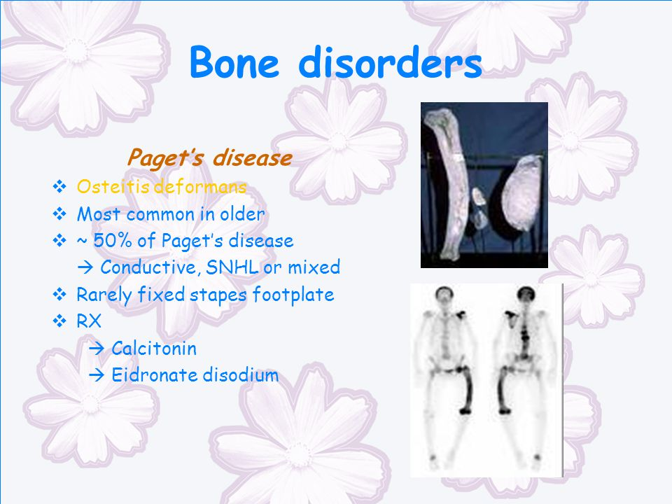 Bone disorders Paget's disease Osteitis deformans Most common in older