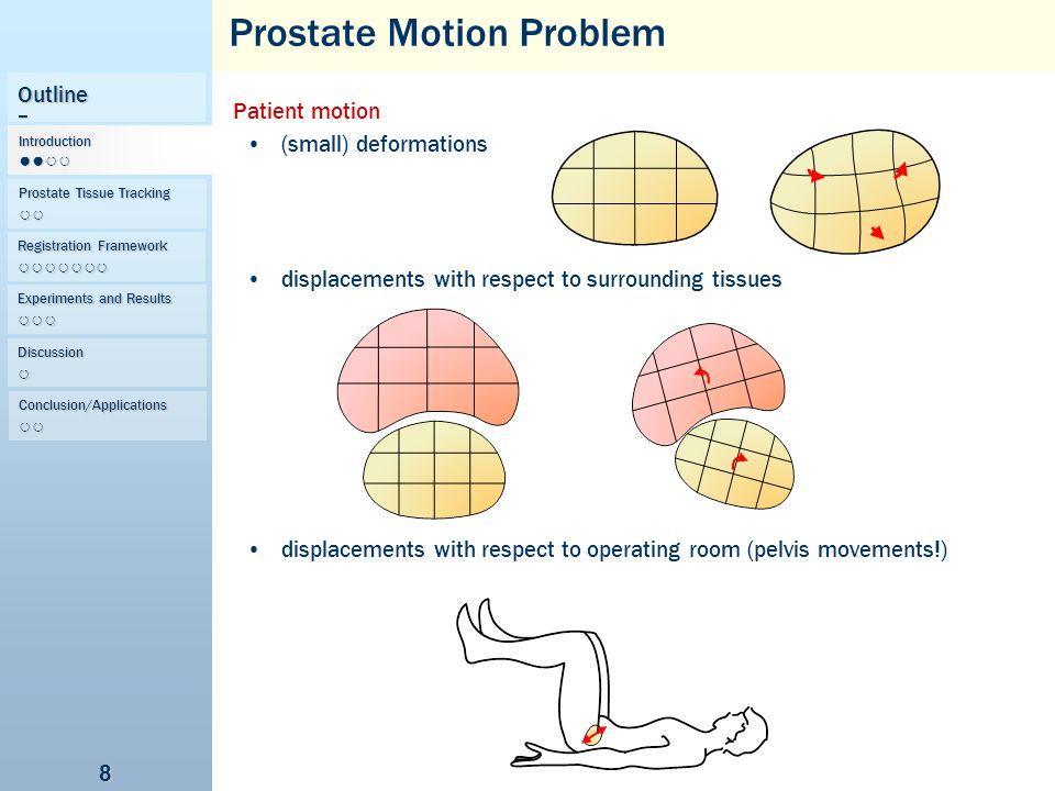 Prostate Motion Problem