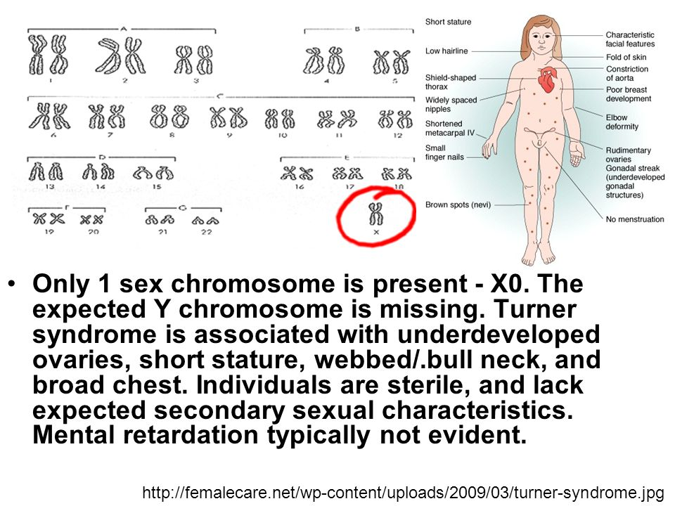 A of sex non chromosome chromosomal abnormality