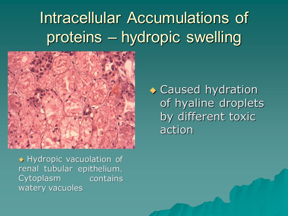 dystrophias intracellular and extracellular accumulation