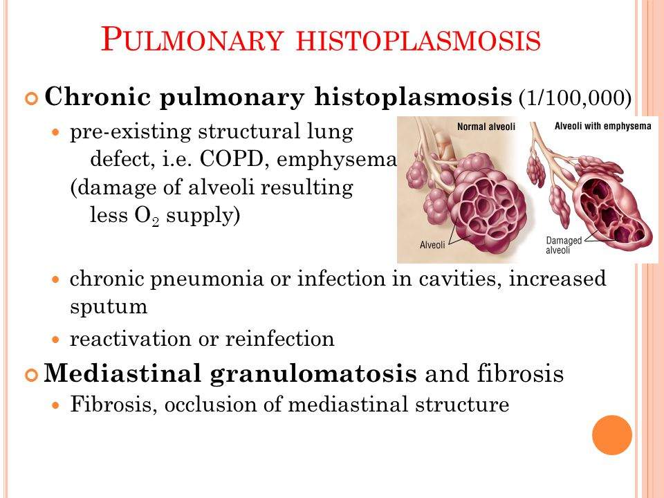 Pulmonary histoplasmosis