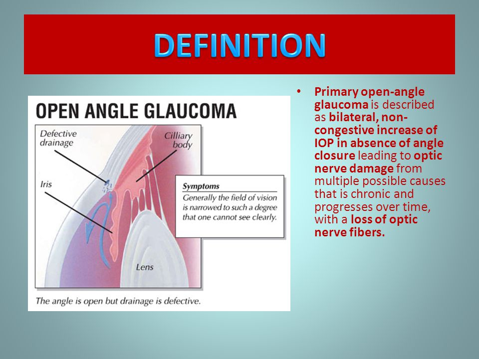 optic nerve and open angle glaucoma Some of the risk factors for primary open-angle glaucoma have been extensively the final common pathway for all potential etiologies of poag is optic nerve head.