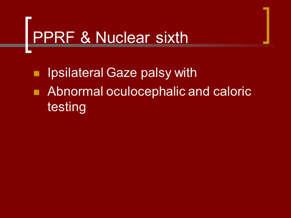 PPRF & Nuclear sixth Ipsilateral Gaze palsy with
