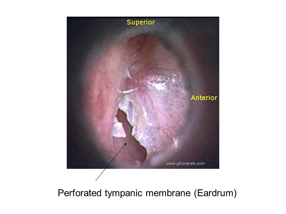 Perforated tympanic membrane (Eardrum)