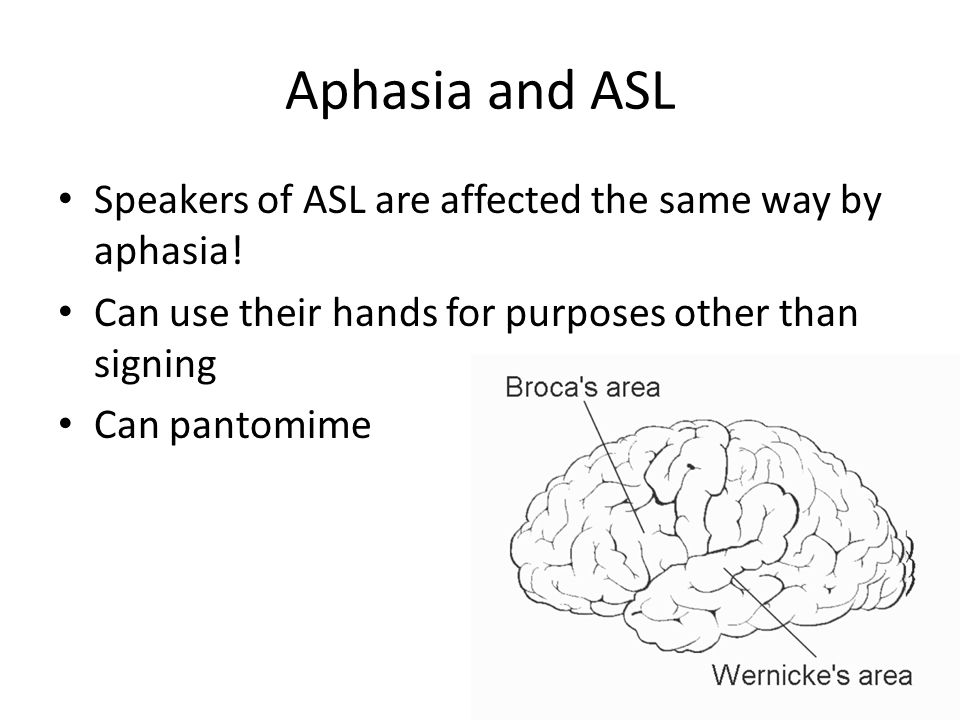 Aphasia and ASL Speakers of ASL are affected the same way by aphasia!