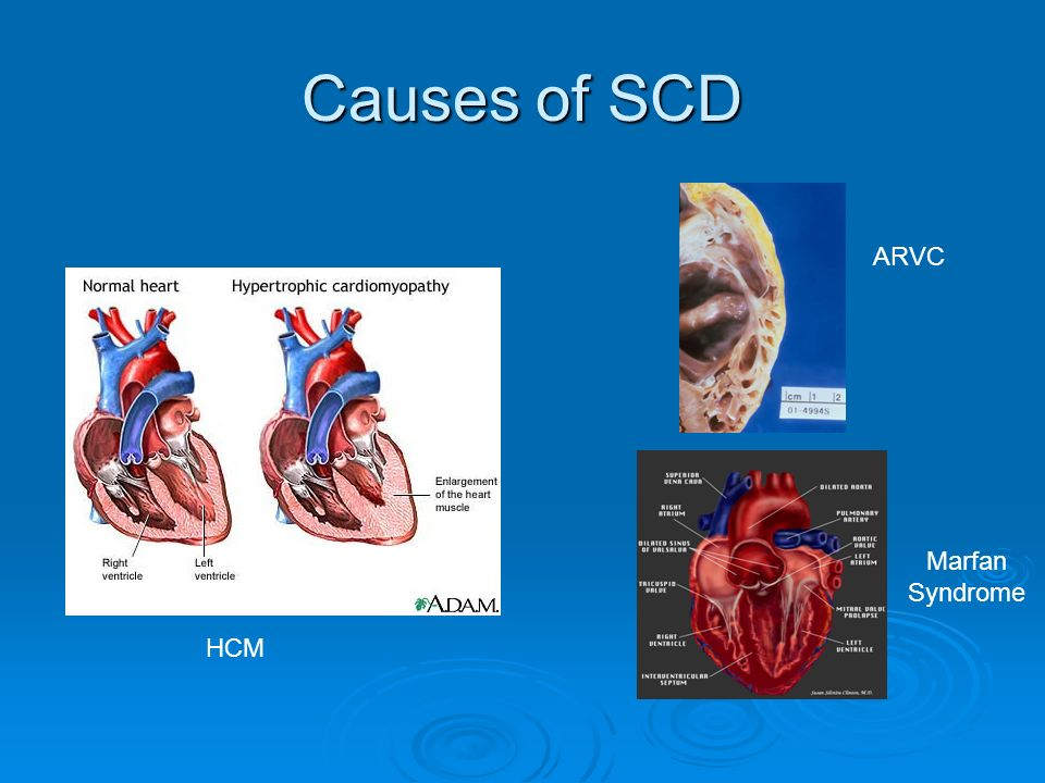 Causes of SCD ARVC Marfan Syndrome HCM
