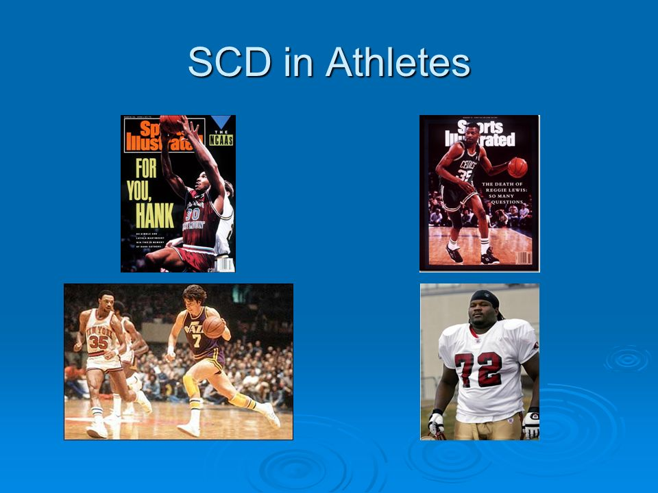 SCD in Athletes