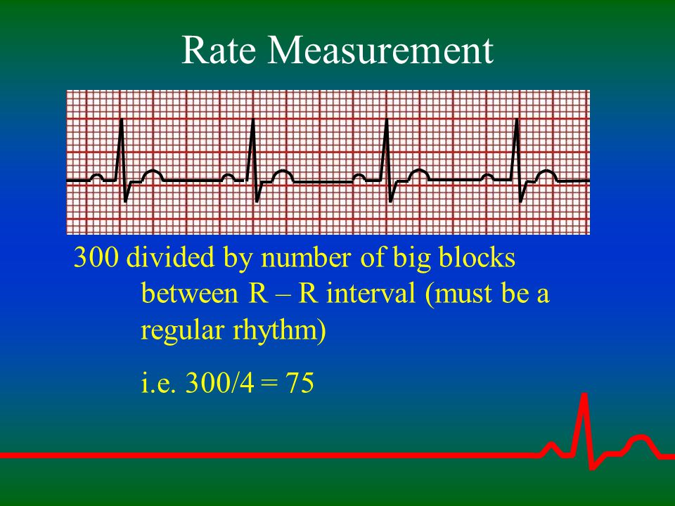 Rate Measurement 300 divided by number of big blocks between R – R interval (must be a regular rhythm)