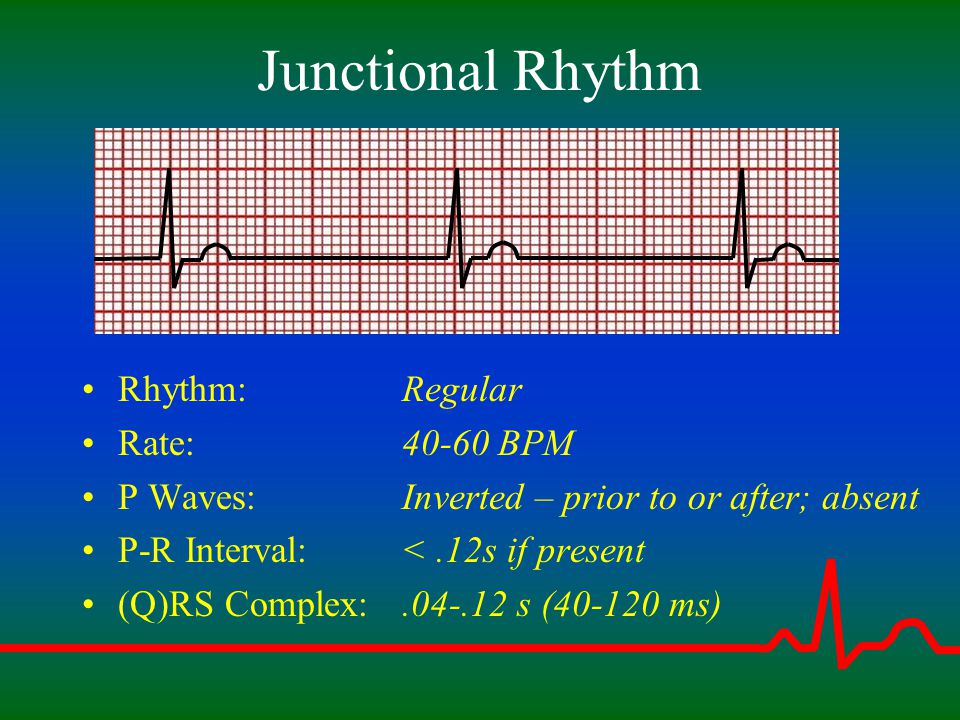 Junctional Rhythm Rhythm: Rate: P Waves: P-R Interval: (Q)RS Complex: