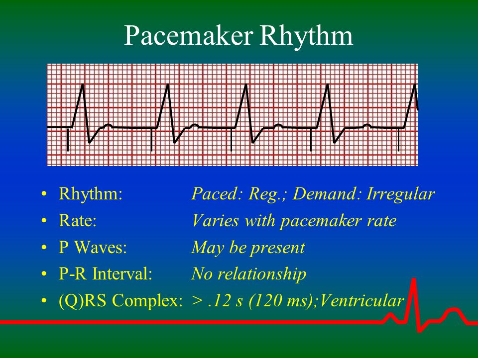 Pacemaker Rhythm Rhythm: Rate: P Waves: P-R Interval: (Q)RS Complex: