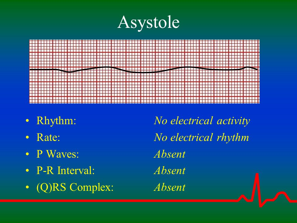 Asystole Rhythm: Rate: P Waves: P-R Interval: (Q)RS Complex: