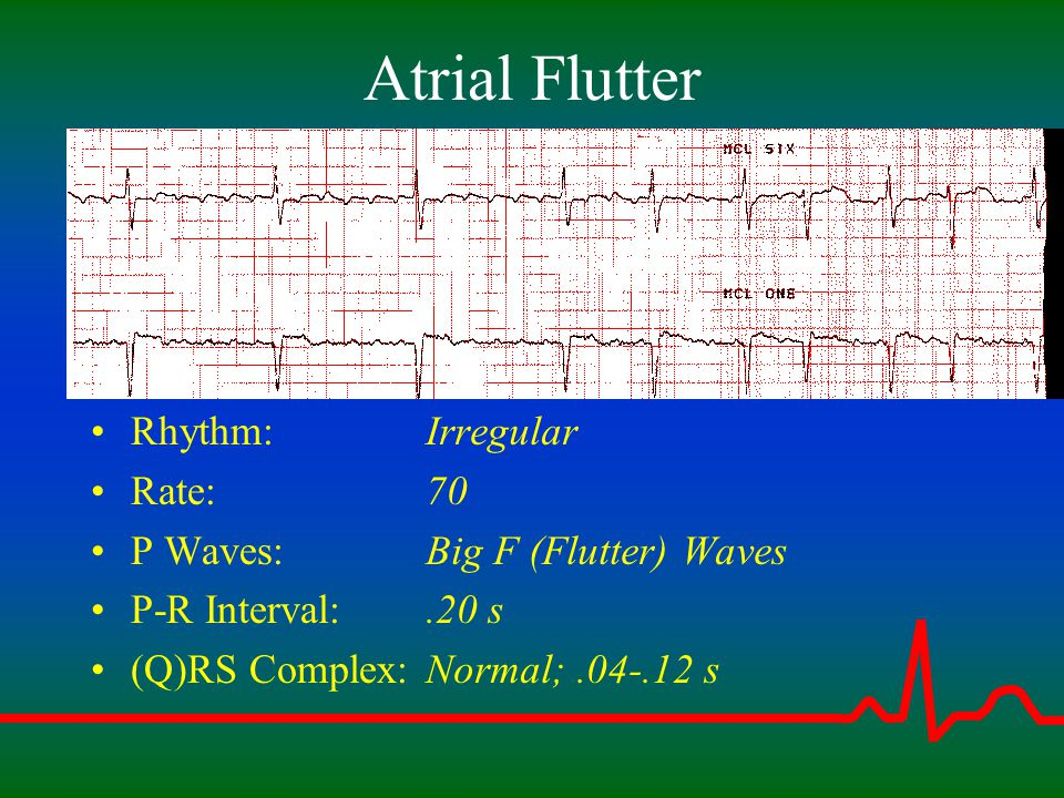 Atrial Flutter Rhythm: Rate: P Waves: P-R Interval: (Q)RS Complex: