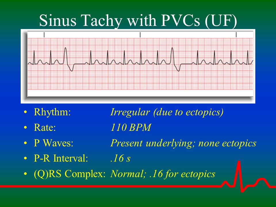 Sinus Tachy with PVCs (UF)