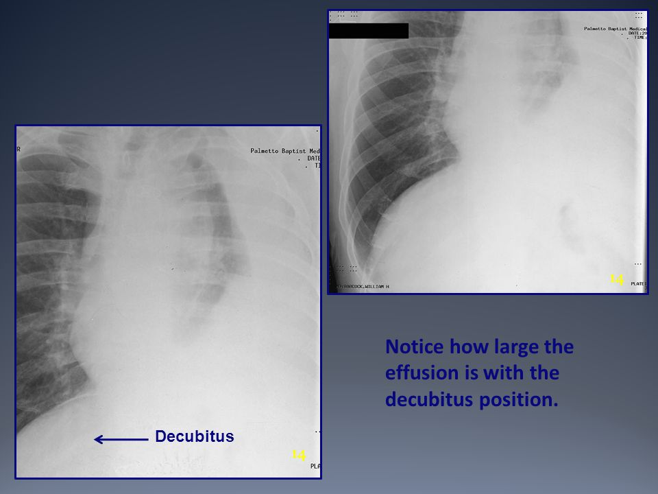 Notice how large the effusion is with the decubitus position.