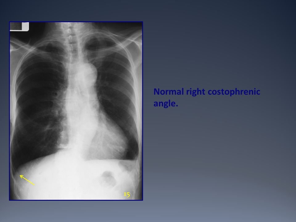 Normal right costophrenic angle.