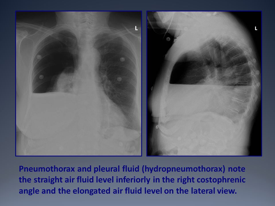 Pneumothorax and pleural fluid (hydropneumothorax) note the straight air fluid level inferiorly in the right costophrenic angle and the elongated air fluid level on the lateral view.