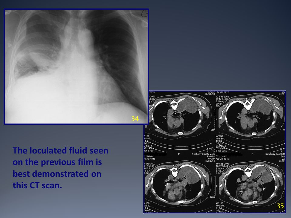 34 The loculated fluid seen on the previous film is best demonstrated on this CT scan. 35