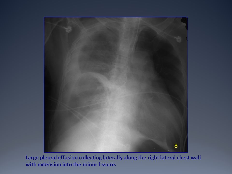 8 Large pleural effusion collecting laterally along the right lateral chest wall with extension into the minor fissure.
