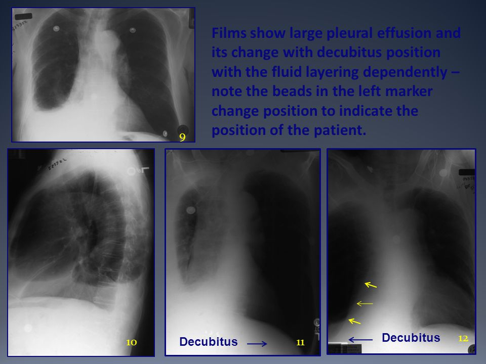 Films show large pleural effusion and its change with decubitus position with the fluid layering dependently – note the beads in the left marker change position to indicate the position of the patient.