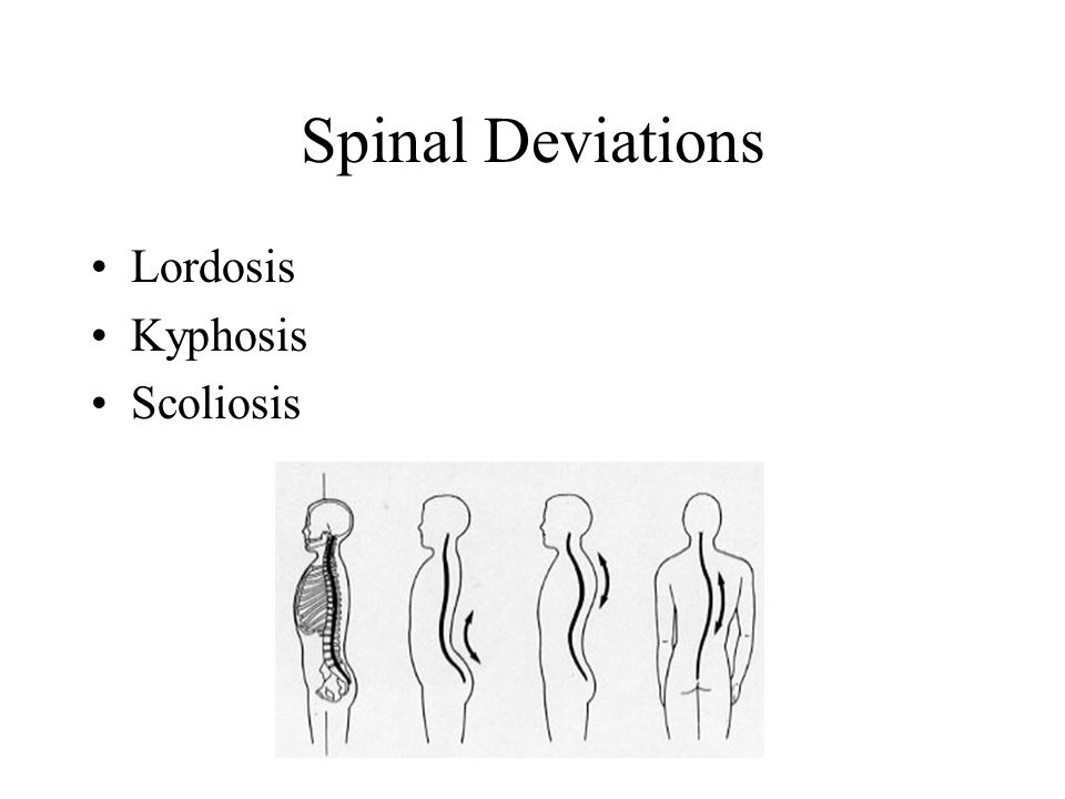 Spinal Deviations Lordosis Kyphosis Scoliosis