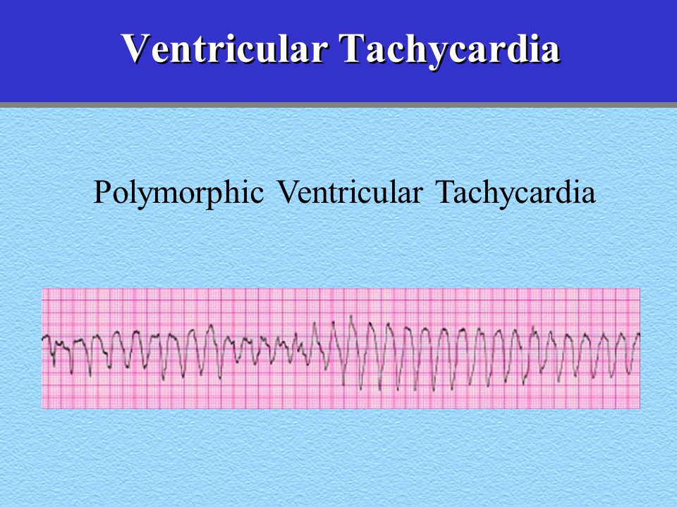 Advanced Cardiac Life Support - ppt video online download