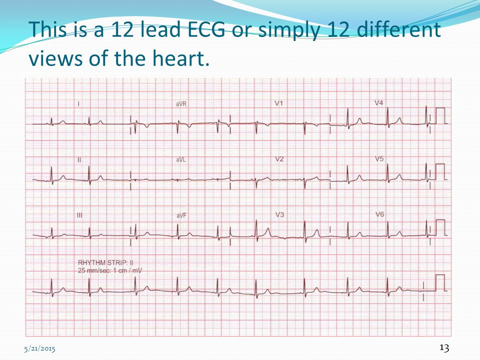 This is a 12 lead ECG or simply 12 different views of the heart.