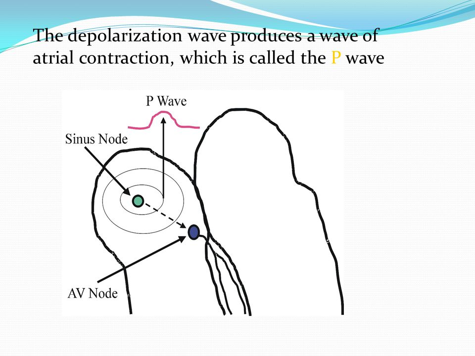 The depolarization wave produces a wave of atrial contraction, which is called the P wave