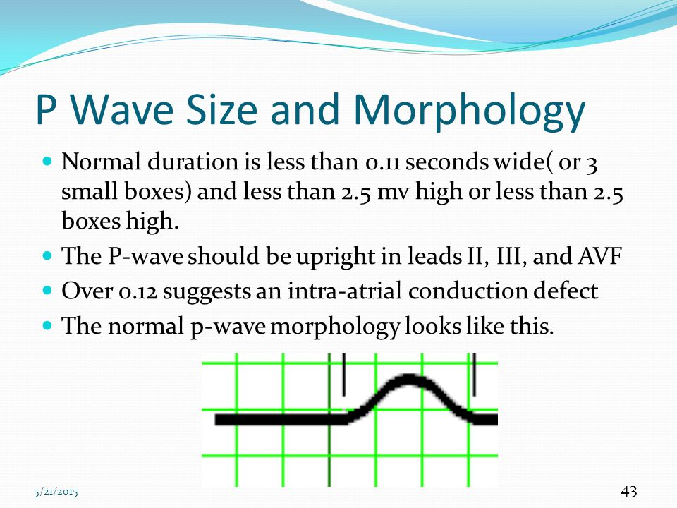P Wave Size and Morphology