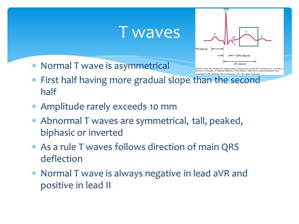 T waves Normal T wave is asymmetrical