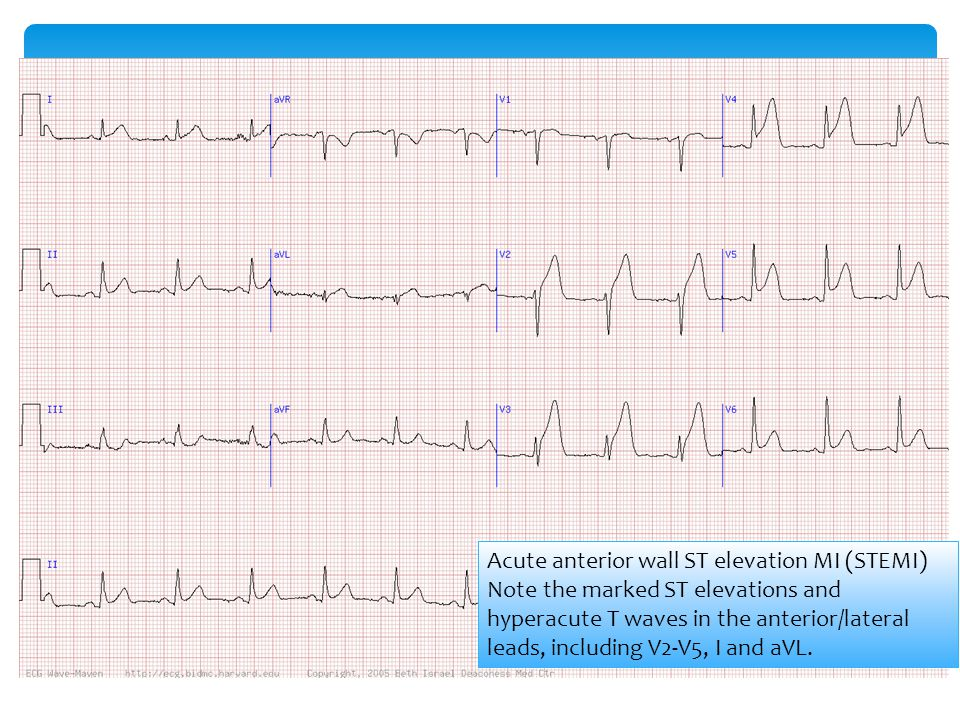 Acute anterior wall ST elevation MI (STEMI) Note the marked ST elevations and hyperacute T waves in the anterior/lateral leads, including V2-V5, I and aVL.