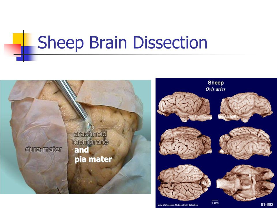 Sheep brain dissection : First love 2004