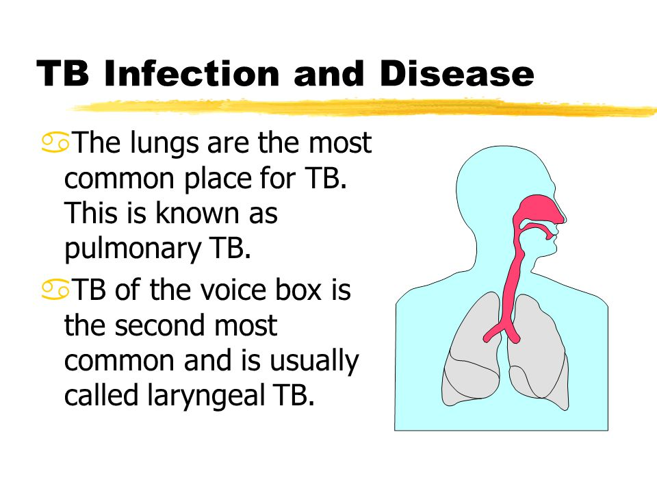 tuberculosis is a common disease Most important in tb prevention is for people with infectious tb to  you are from  a country where tb disease is common such as south africa.