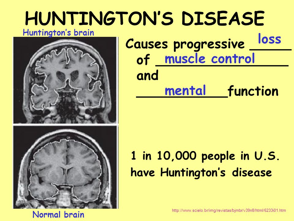 HUNTINGTON'S DISEASE loss