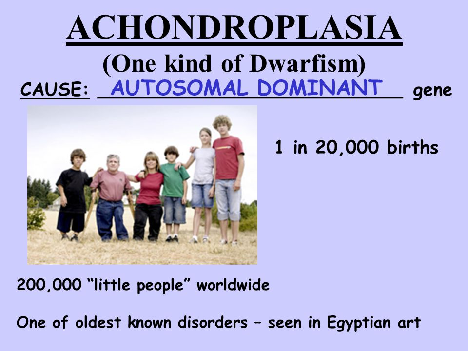 ACHONDROPLASIA (One kind of Dwarfism)