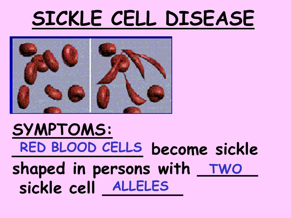 SICKLE CELL DISEASE SYMPTOMS:
