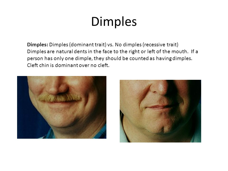 """a genetic trait dimples Here's the two types of dimples and why only some people have them  for a long time, dimples were considered a """"dominant"""" genetic trait: this means if both ."""