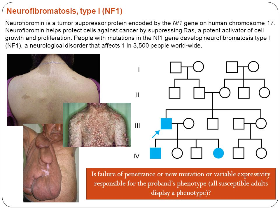 neurofibromatosis genetic disorder that ceases cell In people with nf1, one copy of the nf1 gene is altered due to either  opens  new opportunities for treatment for nf1, cancer, and other disorders  that tells  the protein production machinery in the cell to cease production of.