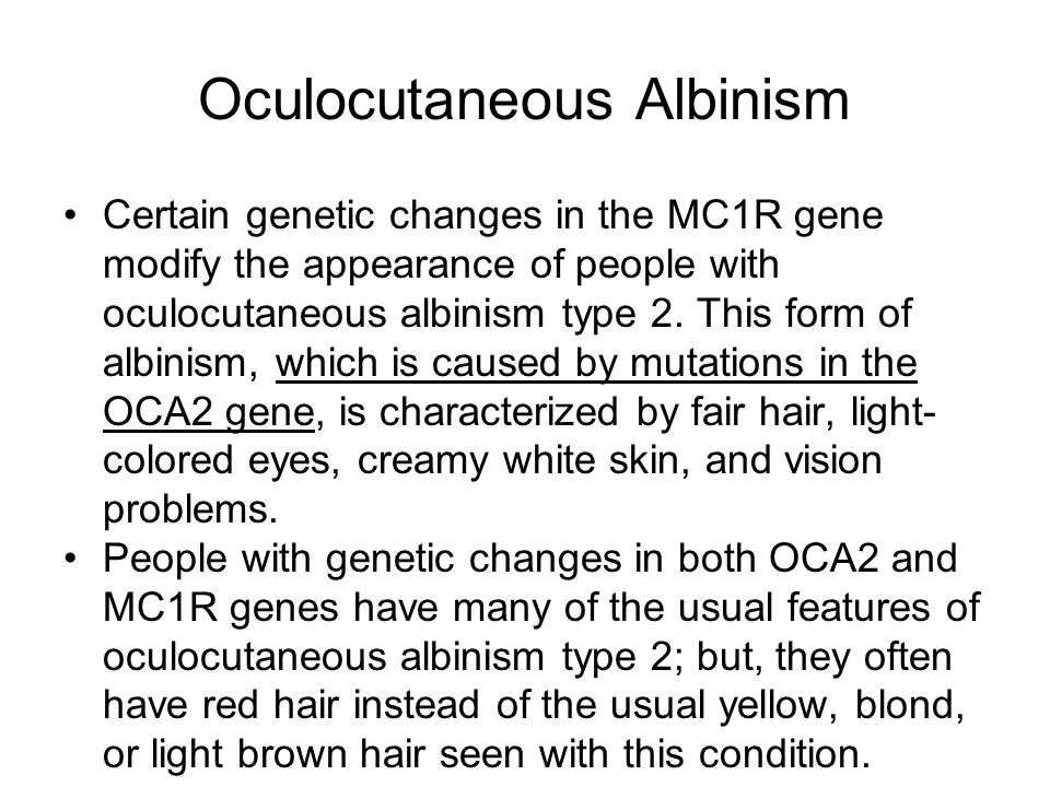 albinism essay Albinism essay - page:1 albinism is a very serious disease that could end up in death albinism is a recessive inherited defect in melanin.