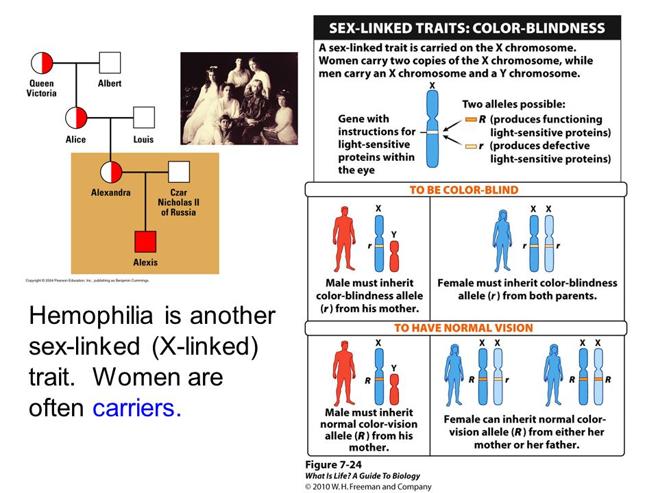 Hemophilia is another sex-linked (X-linked) trait
