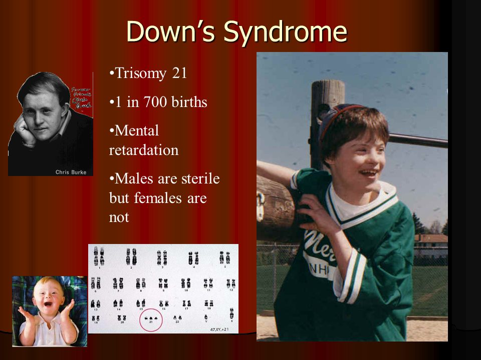 a comparison between turner syndrome and cat cry syndrome Cri du chat syndrome, also known as chromosome 5p deletion syndrome, 5p−  syndrome (pronounced five p minus) or lejeune's syndrome, is a rare genetic  disorder due to chromosome deletion on chromosome 5 its name is a french  term (cat-cry or call of the cat) referring to the  monosomy turner syndrome  (45,x.