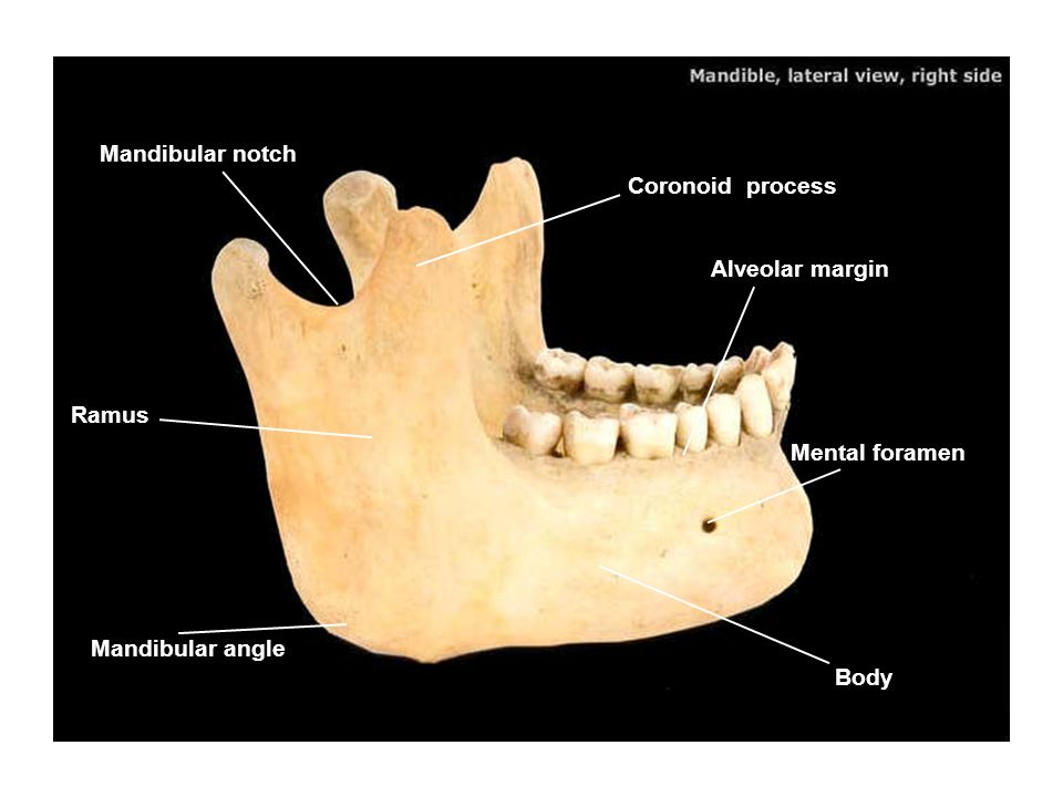 Mandibular notch Coronoid process Alveolar margin Ramus Mental foramen Mandibular angle Body