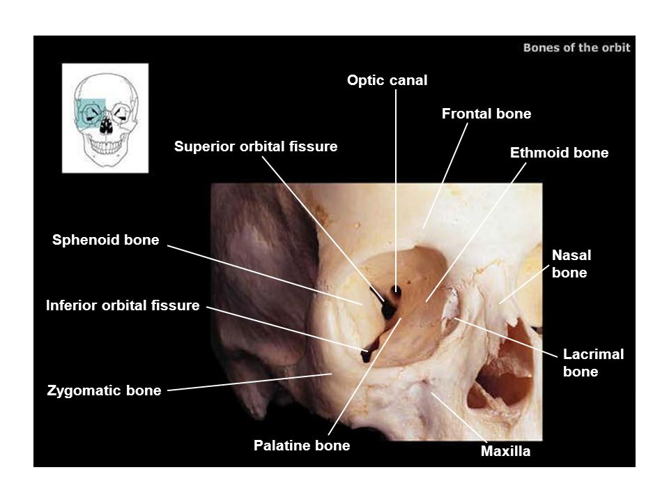 Optic canal Frontal bone. Superior orbital fissure. Ethmoid bone. Sphenoid bone. Nasal bone. Inferior orbital fissure.