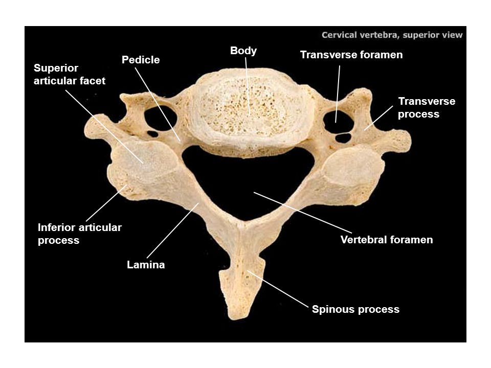 Body Transverse foramen. Pedicle. Superior articular facet. Transverse process. Inferior articular process.