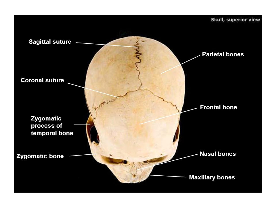 Sagittal suture Parietal bones. Coronal suture. Frontal bone. Zygomatic process of temporal bone.